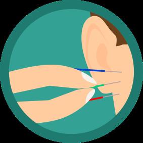 acupuncture-3654316_1280